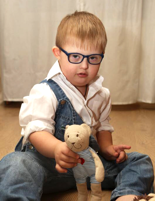 21 марта – Всемирный день человека с синдромом Дауна